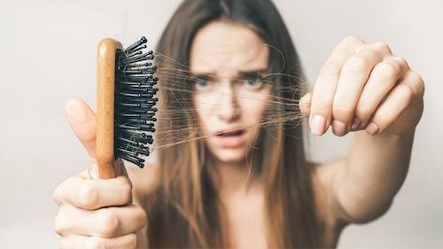 management-of-hair-loss