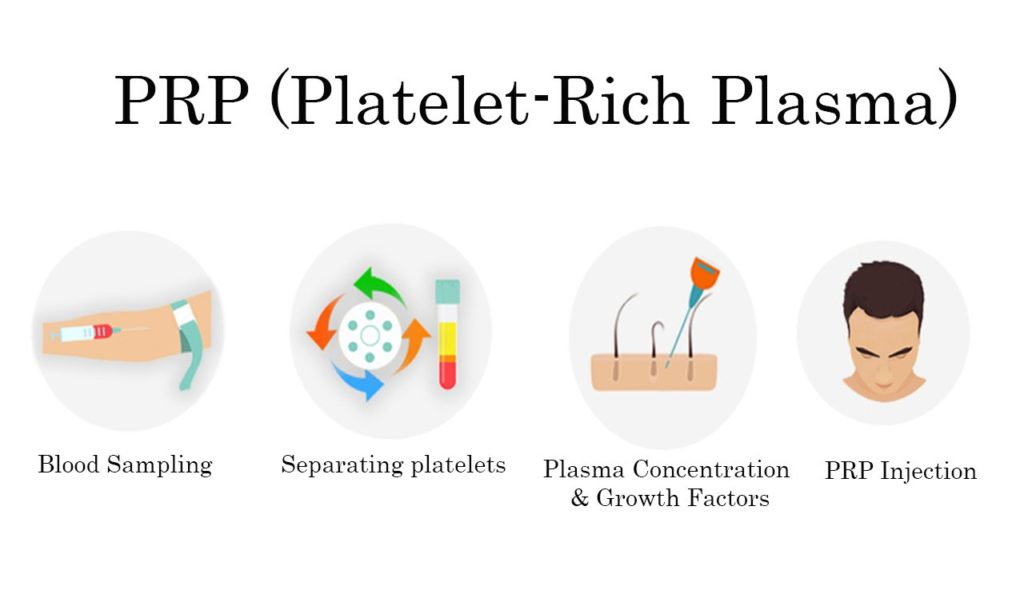 PRP Treatment - Platelet-Rich Plasma - Platelet-Rich Plasma Injection - PRP injection - PRP Treatment for Hair Loss - How Platelet-Rich Plasma Injection helps to restore your hair