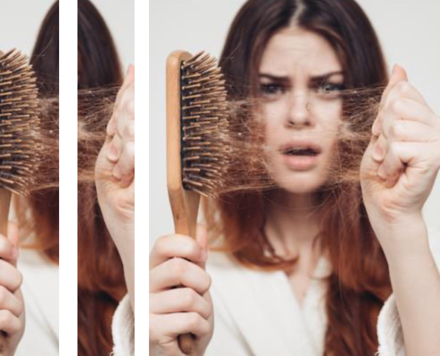 6-Tips-To-Keep-Your-Mind -Healthy-To-Avoid-Excessive-Hair-Fall